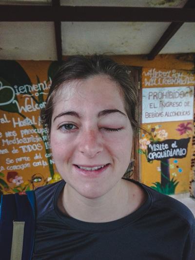 Cécilia S'est Fait Piquée Par Un Moustique Sur La Paupière Dans La Jungle